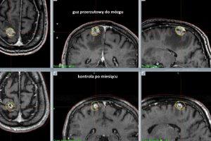 przerzut-do-mozgu